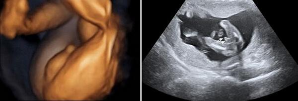 25 Haftalık Erkek Bebek Ultrason Görüntüsü