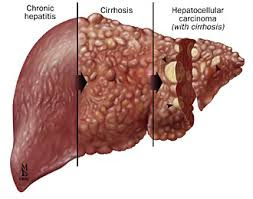 penyebab dan gejala penyakit liver