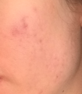 6 months after starting Accutane treatment