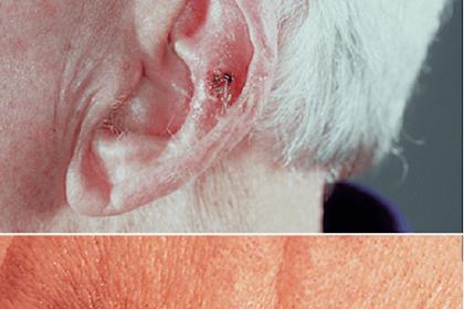 Tanda, Gejala dan Pengobatan Kanker kulit