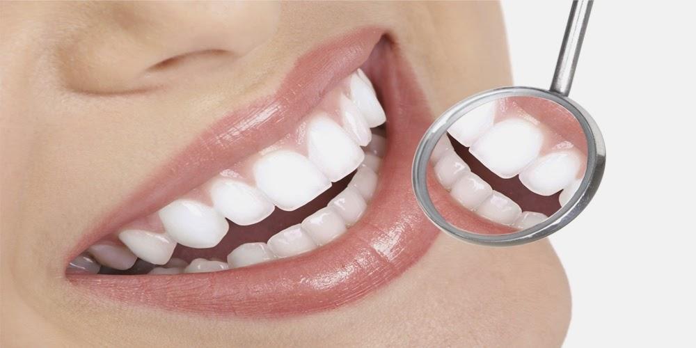điều cần biết về bọc răng sứ -1