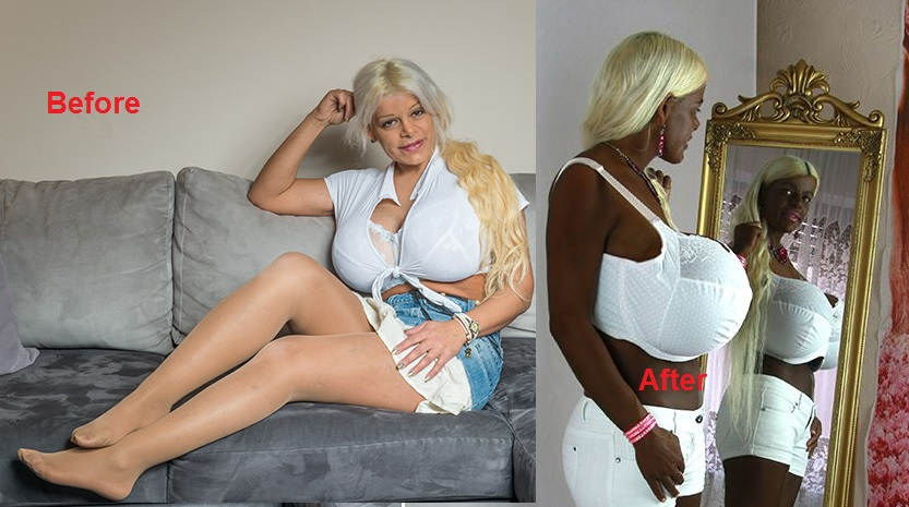Meet German Model, Martina Big With 32k Boobs Who Bleached ...