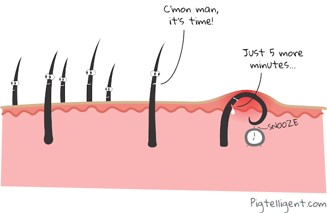 What is Ingrown Hair and How Ingrown Hair Looks