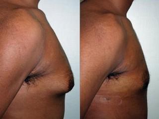 Steroid breast tissue