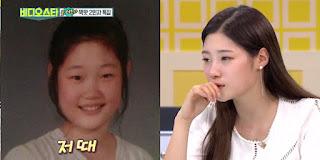 Jung Chaeyeon ดาราเกาหลีทำศัลยกรรม