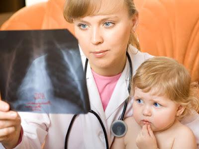 Cara Menyembuhkan Pneumonia Pada Anak dan Bayi