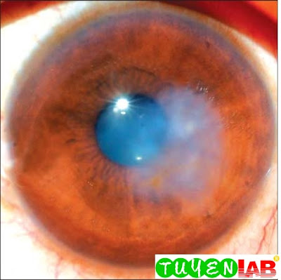 Fig. 2.14: A clinical presentation of a fungal keratitis with a disproportionately high stromal inflammation. This presentation can mimic a viral keratitis