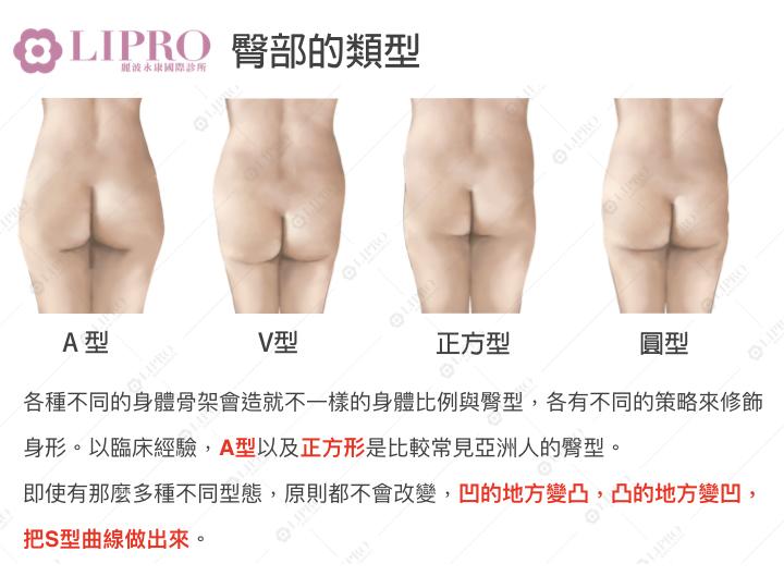 臀部的類型