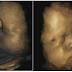 Inilah yang Terjadi Pada Bayi dalam Kandungan Ketika Ibunya Menangis atau Stres. Ibu Hamil Wajib Tahu!