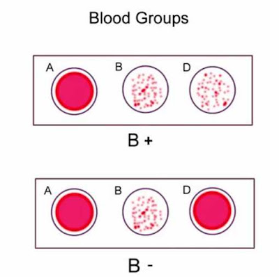 Blood-Group-B-result