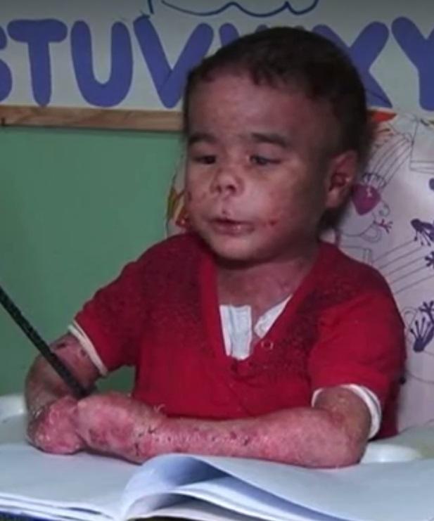 Morre Garoto Pedrinho de Taquaritinga do Norte, portador de doença rara na pele