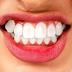 Mengatasi Gigi Kuning dengan Cara Alami yang Bisa Dilakukan Sendiri Dirumah