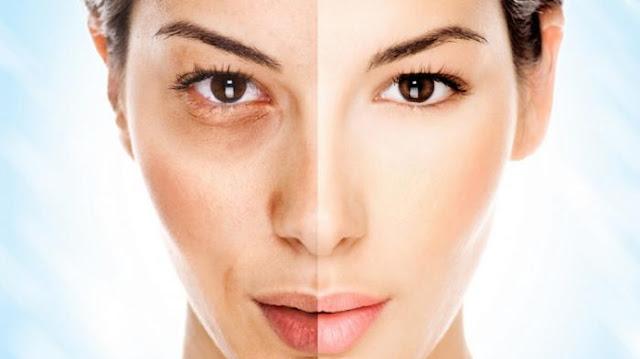 Inilah 6 Faktor Penyebab Wajah Anda Terlihat Tua