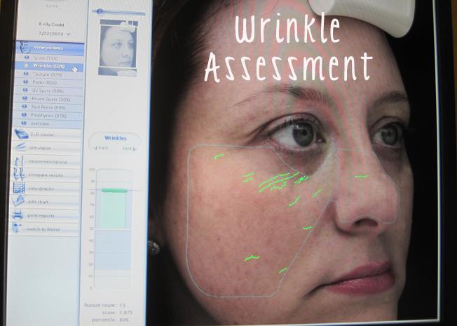 DermaPen, anti-aging, non-invasive