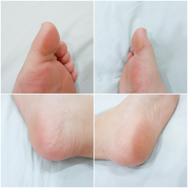 baby-foot-mask-after