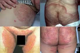 obat sakit obat gatal selangkangan dan pantat ampuh