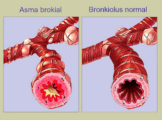 Sesak nafas dialami oleh seseorang yang mengidap asma dikala penyakitnya itu kambuh Kontrol Asma anda ?