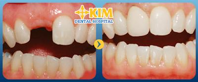 Bị gãy răng hàm không trồng răng có sao không, tại sao?