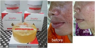 Merk Cream Penghilang Flek Hitam Terkenal Ampuh Dan Aman