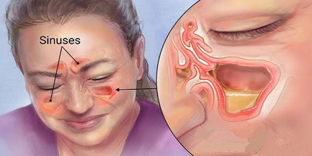 Sinusitis - Watch This Simple Method To Release Paranasal Sinus And Congestion Of The Nose In 20 Seconds