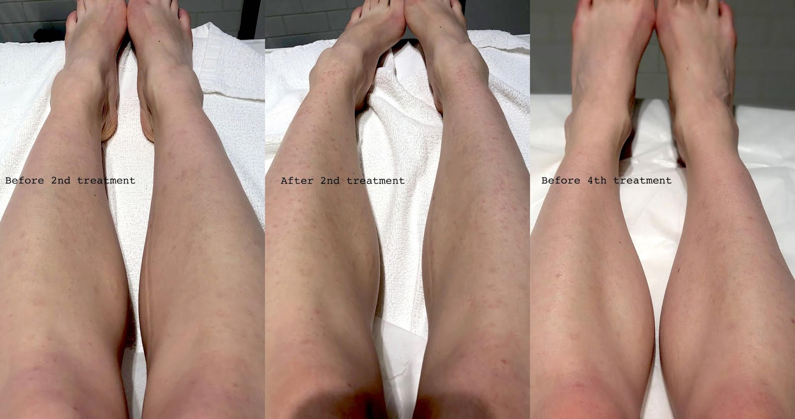 Laser Treatment Review Toronto
