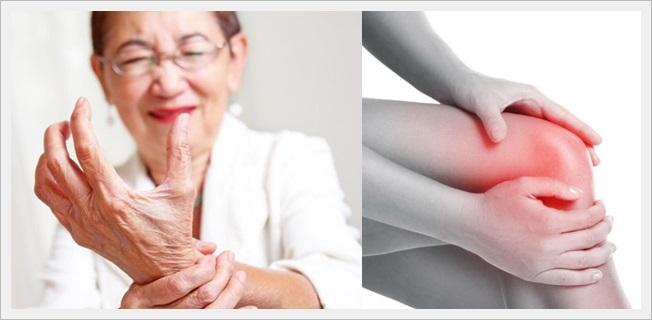Cara Efektif Mengatasi Nyeri Sendi Pada Penderita Lupus