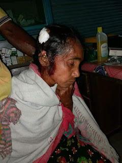 BRUTAL GRANIZADA EN BANGLADESH DEJA 8 MUERTOS y 100 HERIDOS.
