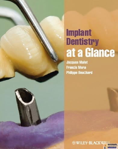 Implant Dentistry at a Glance - Jacques Malet,Francis Mora,Philippe Bouchard - 1st.ed. © 2012.pdf