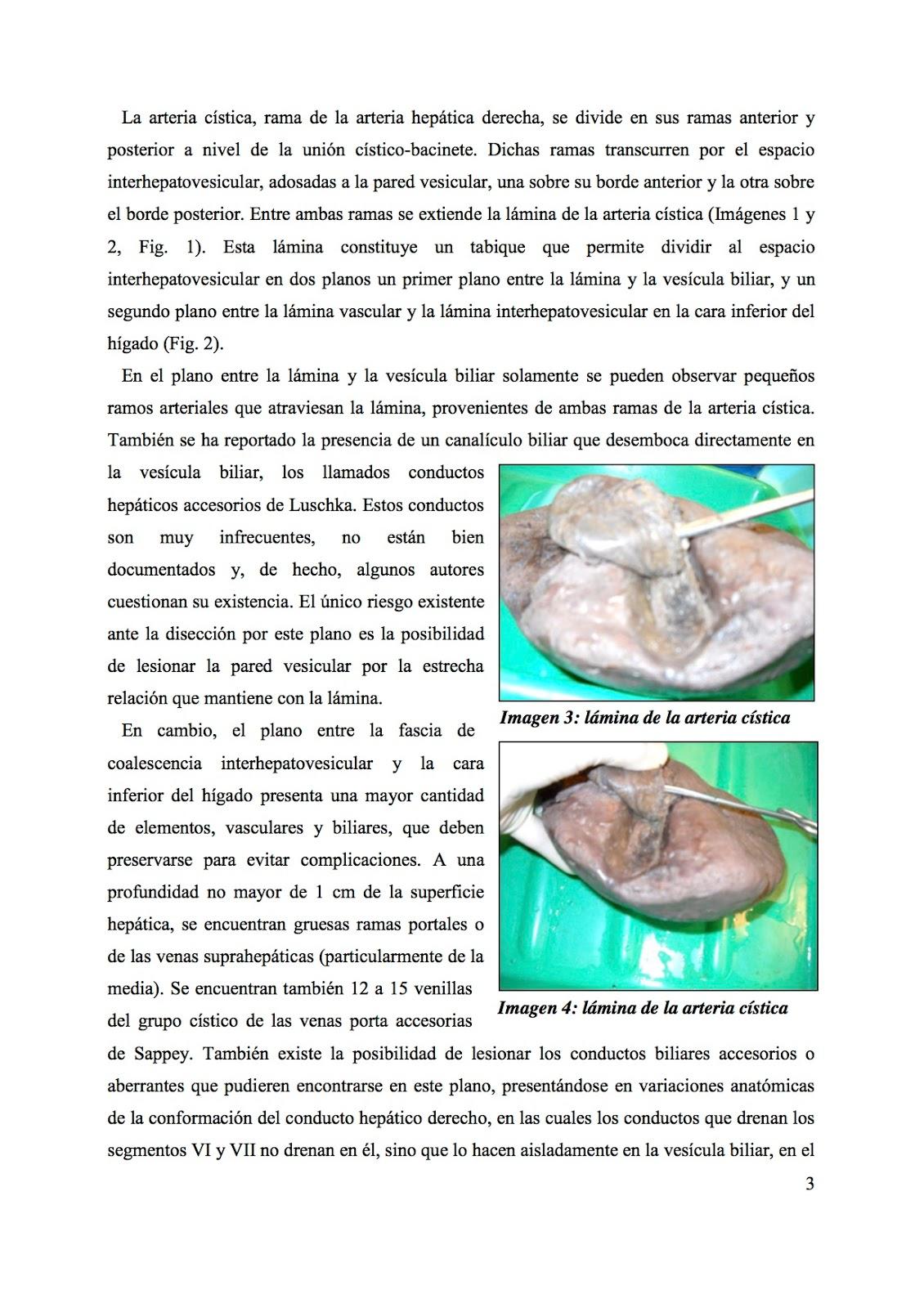 Cuadernos de Anatomía Quirúrgica: El espacio interhepatovesicular