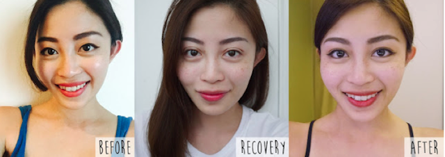 Double eyelid surgery Singapore review