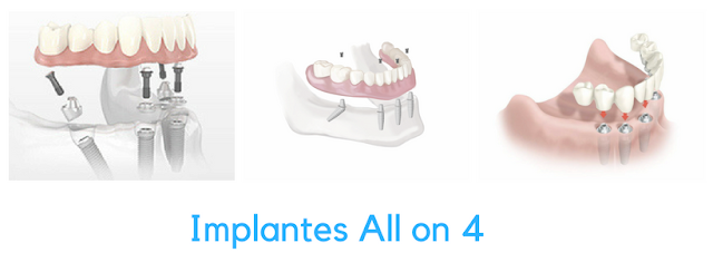 Implantes dentários All on 4