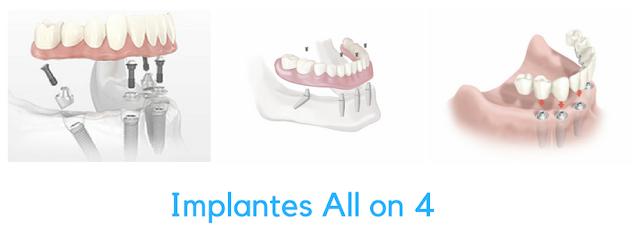 Implantes dentários All on 4