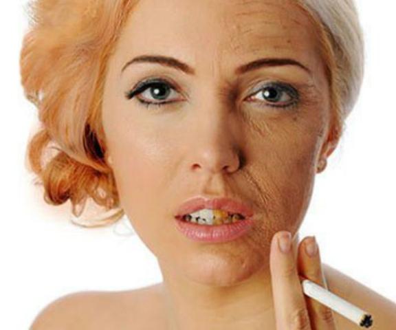 merokok menyebab kita tua. Tips awet muda berhenti merokok
