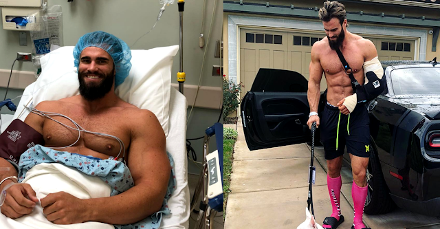Calum Von Moger Update His Successful Bicep Surgery On Instagram
