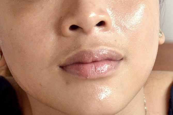 زيت اللوز هو رائع للعناية بالبشرة و ممتاز في تبيض الوجه.