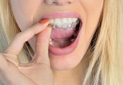 Gece Uyurken Diş Sıkma Ve Diş Gıcırdatma Neden Olur ?