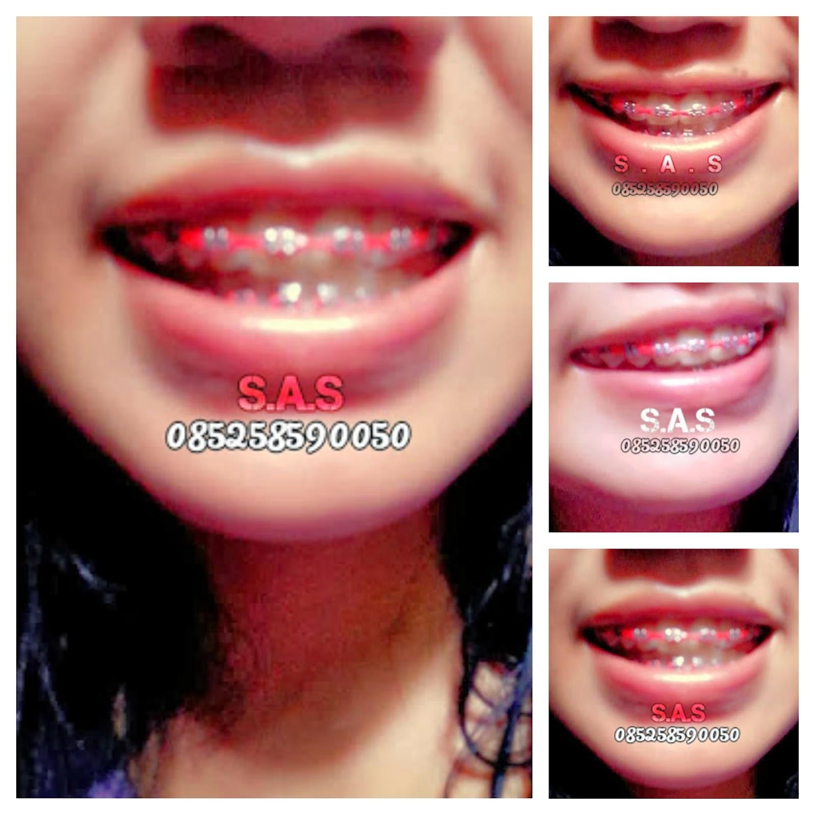 Koleksi Foto Cewek Berkawat Gigi Part 1 Versi S A S S A