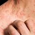 Cara merawat eczema menggunakan cuka epal