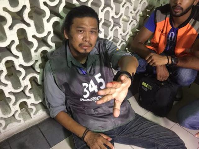 Jurufoto Pian NSTP Dakwa Diserang, Dipijak Penyokong JDT