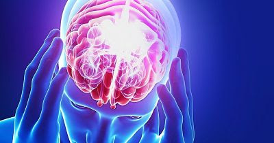 Usan implantes eléctricos para ayudar a mujeres con daño cerebral
