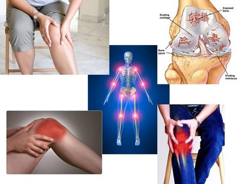 obat pembengkakan lutut di apotik