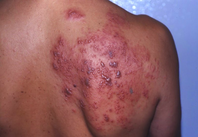 cara mengobati herpes