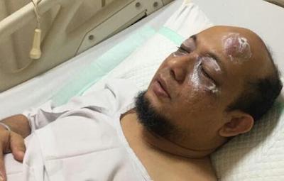 Penyidik KPK yang Tengah Tangani Korupsi E-KTP Disiram Air Keras Usai Shalat Subuh di Masjid