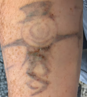 Tattoo healing from Picosure