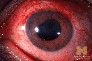 UVitis pic of eyes problems