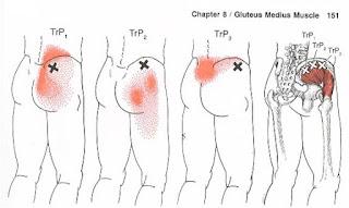 Dor no quadril, dor glútea Dor lombar baixa e Dor sacral - Músculo Glúteo Médio