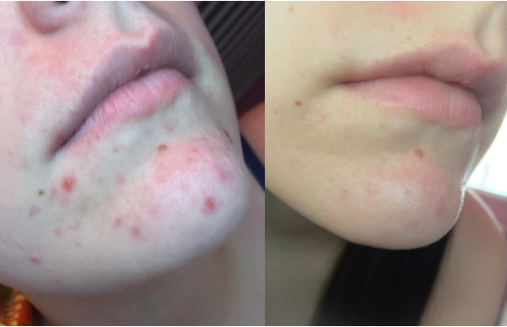Avene Cleanance Expert Emulsion Before and After