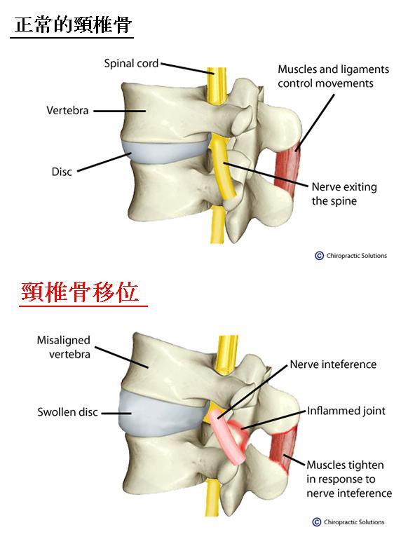 脊骨知識你要識 : 頸椎骨移位