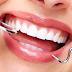 Cara Menjaga Kesehatan Gigi Agar Sehat dan Tidak Berlubang