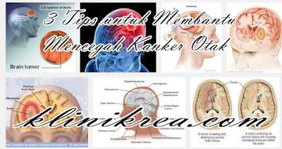 3 Tips untuk Membantu Mencegah Kanker Otak